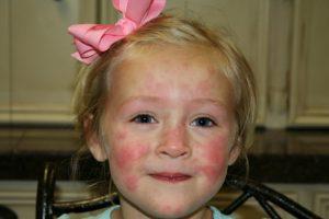 Как сдавать пробы на аллергены