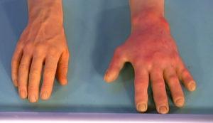 Причины и профилактика аллергии на холод