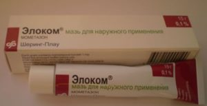 Причины и лечение дерматита периорального