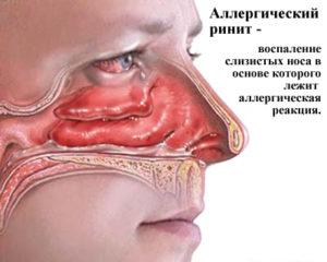 Классификация аллергического ринита
